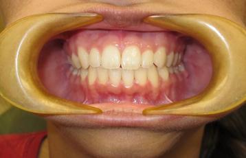 במהלך טיפול יישור שיניים