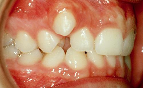 לפני טיפול יישור שיניים