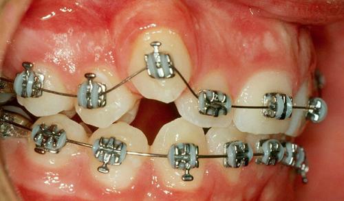תחילת תהליך יישור שיניים