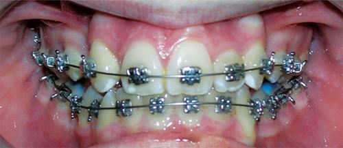 אמצע תהליך יישור שיניים