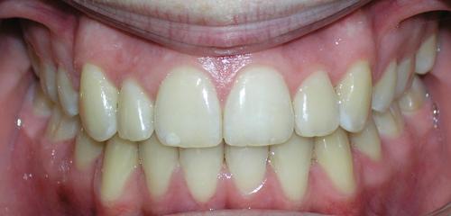 סיום ותוצאה של יישור שיניים