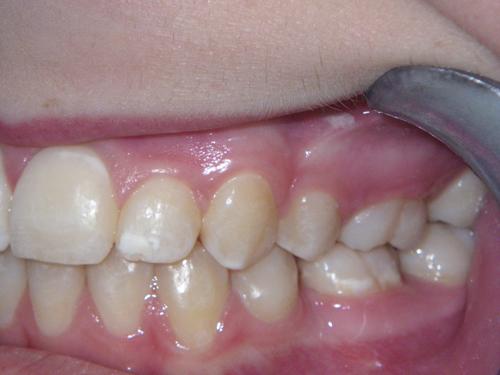 אחרי טיפול יישור שיניים